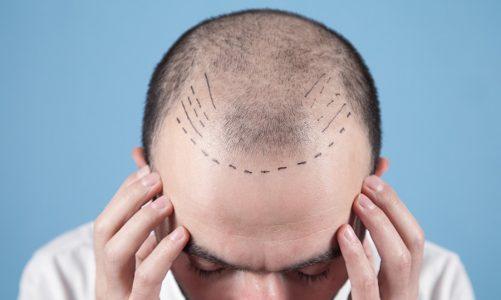 Pourquoi opter pour la dermopigmentation capillaire ?